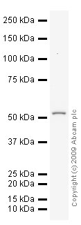 Western blot - Integrin linked ILK antibody (ab19025)