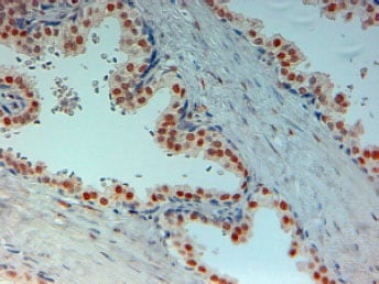 Immunohistochemistry (Formalin/PFA-fixed paraffin-embedded sections) - Anti-Androgen Receptor antibody (ab19066)