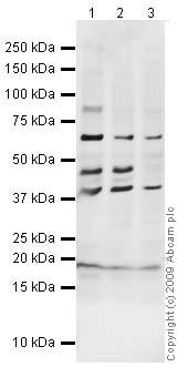 Western blot - BNP antibody (ab19645)