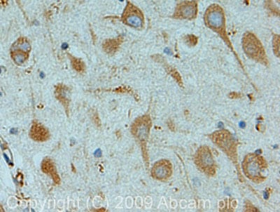 Immunohistochemistry (Formalin/PFA-fixed paraffin-embedded sections) - OS9 antibody (ab19853)