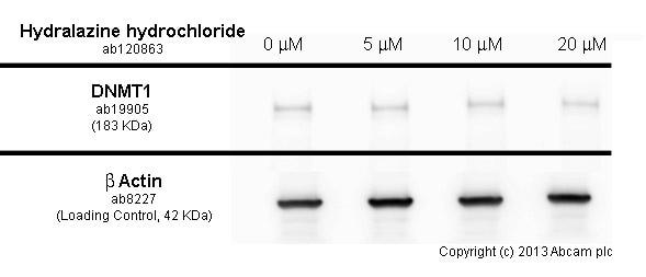 Western blot - Anti-Dnmt1 antibody (ab19905)