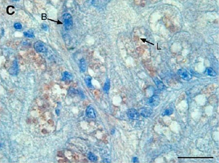 Immunohistochemistry (Formalin/PFA-fixed paraffin-embedded sections) - Anti-Acid Phosphatase antibody (ab2108)