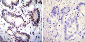 Immunohistochemistry (Formalin/PFA-fixed paraffin-embedded sections)-Anti-NFAT1 antibody [25A10.D6.D2](ab2722)