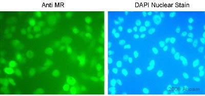 Immunocytochemistry/ Immunofluorescence - Mineralocorticoid Receptor antibody [H10E4C9F] (ab2774)
