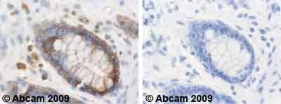 Immunohistochemistry (Formalin/PFA-fixed paraffin-embedded sections) - CFTR antibody [CF3] (ab2784)