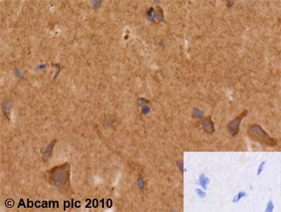 Immunohistochemistry (Formalin/PFA-fixed paraffin-embedded sections) - Anti-Hsc70 antibody [13D3] (ab2788)