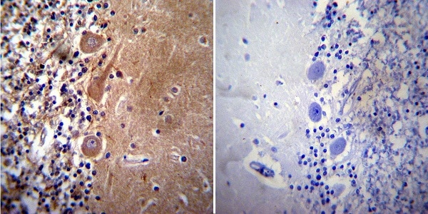 Immunocytochemistry - Anti-Acetylcholinesterase antibody [HR2] (ab2803)