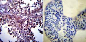 Immunohistochemistry (Formalin/PFA-fixed paraffin-embedded sections)-Anti-p23 antibody [JJ3](ab2814)