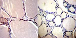 Immunohistochemistry (Formalin/PFA-fixed paraffin-embedded sections)-Anti-CRABP1 antibody [C-1](ab2816)