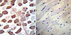 Immunohistochemistry (Formalin/PFA-fixed paraffin-embedded sections)-Anti-SERCA2 ATPase antibody [2A7-A1](ab2861)