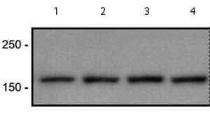 Western blot - CACNA1S antibody [1A] (ab2862)