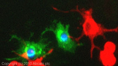 Immunocytochemistry/ Immunofluorescence - Calcium channel L type DHPR alpha 2 subunit antibody [20A] (ab2864)