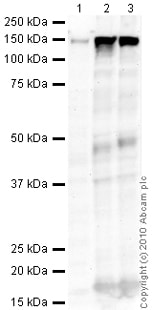 Western blot - Calcium channel L type DHPR alpha 2 subunit antibody [20A] (ab2864)