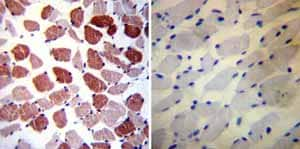 Immunohistochemistry (Formalin/PFA-fixed paraffin-embedded sections)-Anti-Phospholamban antibody [2D12](ab2865)