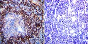 Immunohistochemistry (Formalin/PFA-fixed paraffin-embedded sections)-Anti-ATP1A2 antibody [M7-PB-E9](ab2871)