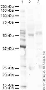 Western blot - Angiostatin antibody (ab2904)