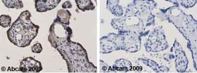 Immunohistochemistry (Formalin/PFA-fixed paraffin-embedded sections)-XRCC3 antibody [XRCC3 10F1/6](ab20254)