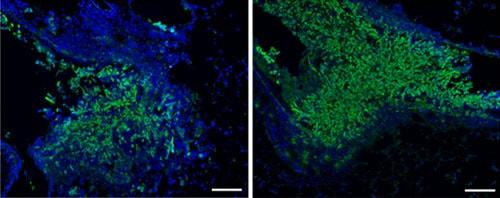 Immunohistochemistry (Frozen sections) - Anti-Aspergillus antibody (ab20419)