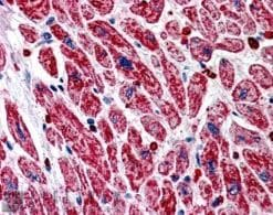 Immunohistochemistry (Formalin/PFA-fixed paraffin-embedded sections) - NIR1 antibody (ab21197)