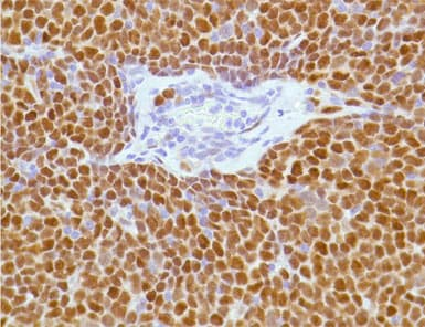 Immunohistochemistry (Formalin/PFA-fixed paraffin-embedded sections) - Anti-Cyclin D1 antibody [SP4], prediluted (ab21699)