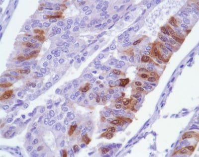 Immunohistochemistry (Formalin/PFA-fixed paraffin-embedded sections) - Anti-Ki67 antibody [SP6], prediluted (ab21700)