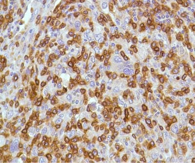 Immunohistochemistry (Formalin/PFA-fixed paraffin-embedded sections) - Anti-CD3 antibody [SP7], prediluted (ab21703)
