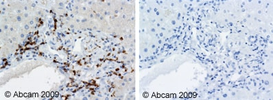 Immunohistochemistry (Formalin/PFA-fixed paraffin-embedded sections) - CD74 antibody [PIN.1] (ab22603)