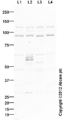 Western blot - Anti-p95 NBS1 antibody (ab23996)
