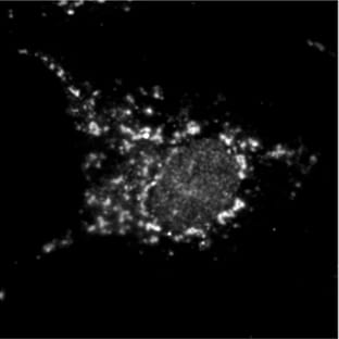 Immunocytochemistry/ Immunofluorescence - Anti-Hepatitis C Virus NS4B antibody [2-H1] (ab24283)