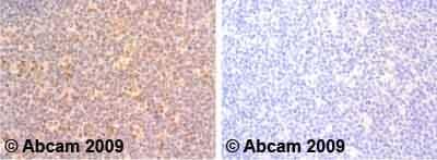 Immunohistochemistry (Formalin/PFA-fixed paraffin-embedded sections)-Interferon gamma antibody(ab25101)
