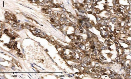 Immunohistochemistry (Formalin/PFA-fixed paraffin-embedded sections) - Anti-CEACAM7 antibody [BAC2] (ab26281)