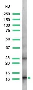 Western blot - S100A4 antibody, prediluted (ab27427)