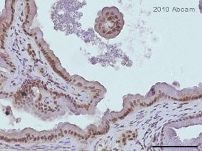 Immunohistochemistry (Formalin/PFA-fixed paraffin-embedded sections) - Notch1 antibody (ab27526)
