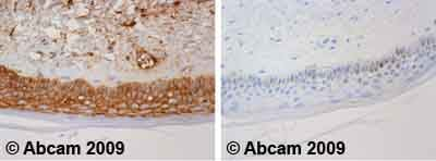 Immunohistochemistry (Formalin/PFA-fixed paraffin-embedded sections)-beta 2 Microglobulin antibody [B2M-02](ab27588)