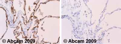 Immunohistochemistry (Formalin/PFA-fixed paraffin-embedded sections) - MUC1 antibody [C595 (NCRC48)] (ab28081)