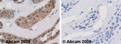 Immunohistochemistry (Formalin/PFA-fixed paraffin-embedded sections) - Calpain S1 antibody - Aminoterminal end domain V (ab28237)