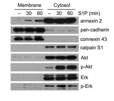 Western blot - Calpain S1 antibody - Aminoterminal end domain V (ab28237)