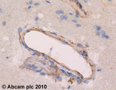 Immunohistochemistry (Formalin/PFA-fixed paraffin-embedded sections)-SREBP2 antibody(ab28482)
