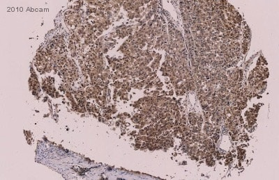 Immunohistochemistry (Formalin/PFA-fixed paraffin-embedded sections) - ELK1 (phospho S389) antibody (ab28818)