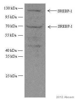 Western blot - Anti-SREBP1 antibody [2A4] (ab3259)