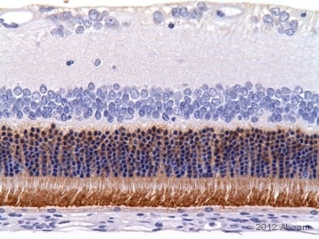 Immunohistochemistry (Formalin/PFA-fixed paraffin-embedded sections) - Anti-Rhodopsin antibody [RET-P1] (ab3267)