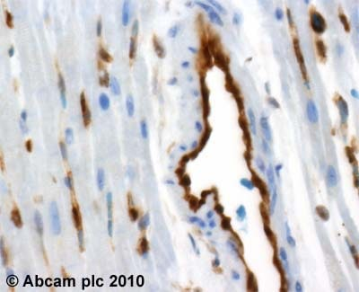 Immunohistochemistry (Formalin/PFA-fixed paraffin-embedded sections) - Proteasome 20S LMP2 antibody (ab3328)