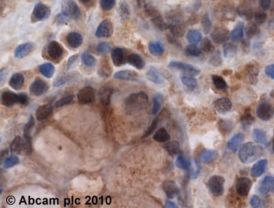 Immunohistochemistry (Formalin/PFA-fixed paraffin-embedded sections) - PSMB5 antibody (ab3330)