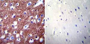 Immunohistochemistry (Formalin/PFA-fixed paraffin-embedded sections)-Anti-Calcium Pump PMCA2 ATPase antibody(ab3529)