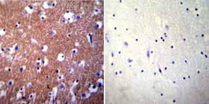 Immunohistochemistry (Formalin/PFA-fixed paraffin-embedded sections)-Anti-Calcium Pump PMCA3 ATPase antibody(ab3530)