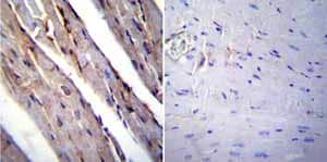 Immunohistochemistry (Formalin/PFA-fixed paraffin-embedded sections)-Anti-RAGE antibody(ab3611)