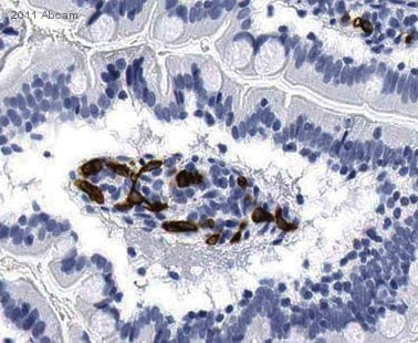 Immunohistochemistry (Formalin/PFA-fixed paraffin-embedded sections) - CD34 antibody [QBEND / 10] (Biotin) (ab30375)