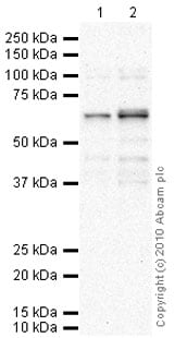 Western blot - PPM1D antibody (ab31270)