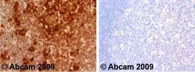 Immunohistochemistry (Formalin/PFA-fixed paraffin-embedded sections)-c-Myc antibody(ab31426)