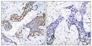 Immunohistochemistry (Formalin/PFA-fixed paraffin-embedded sections) - Anti-Estrogen Receptor alpha (phospho S118) antibody (ab31477)